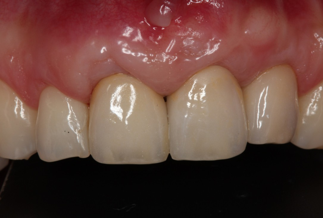 Multiple gingival recessions treated by MCAT in conjunction with mucoderm® and Straumann® Emdogain® (1) - Rathe