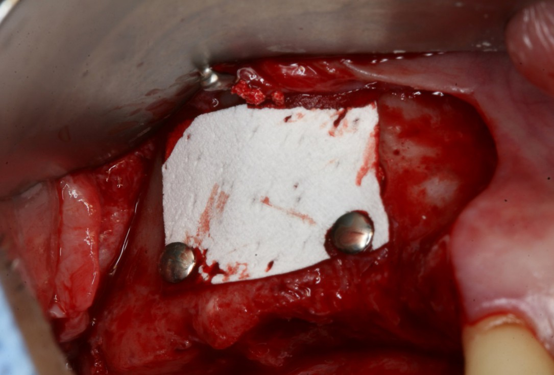 Two-stage sinus lift with maxresorb® and collprotect® - Dr. Steffen Kistler