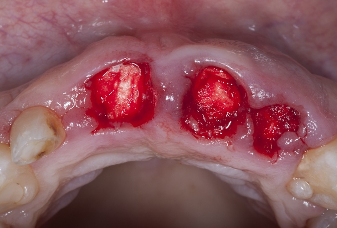 Socket preservation with collacone® - Dr. K. Chmielewski