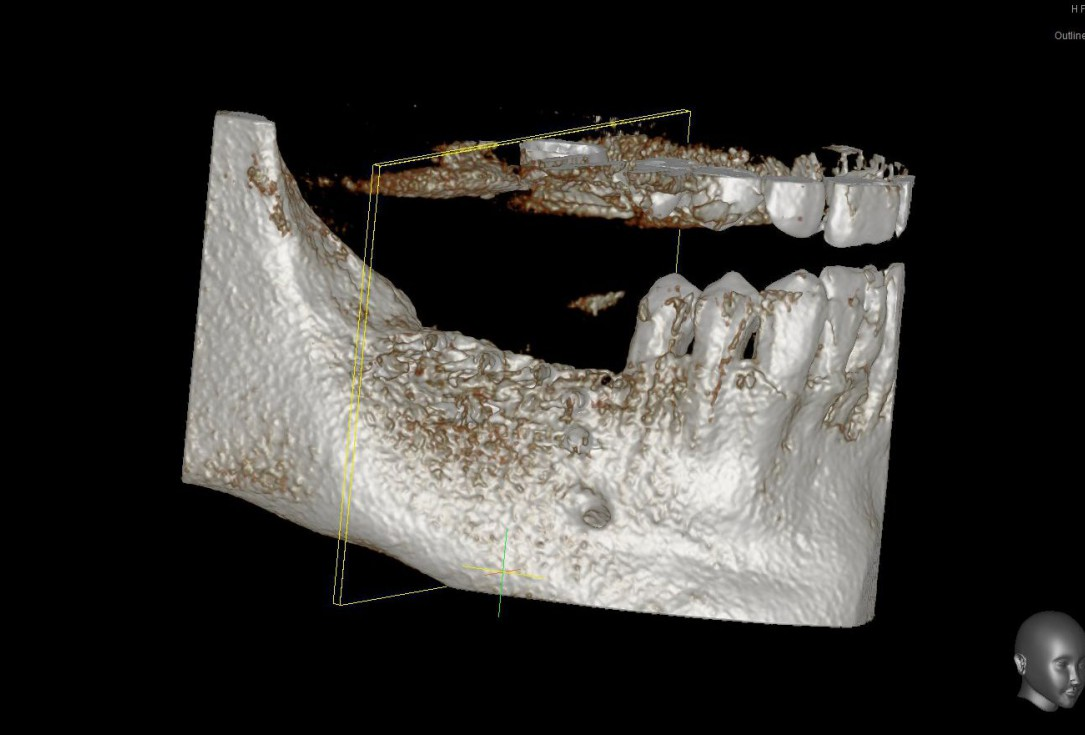 Three-dimensional augmentation with maxgraft® cortico - Dr. R. Würdinger