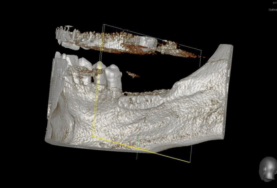 Three-dimensional augmentation with maxgraft® cortico - Dr. R. Würdinger
