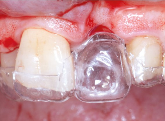 GBR using layering technique in aesthetic zone with maxgraft® and cerabone® -Dr. H. Maghaireh and V. Ivancheva