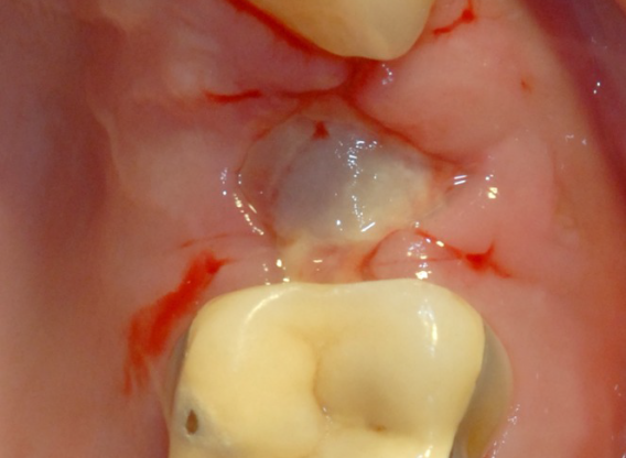Ridge preservation with cerabone® and Jason® membrane - Dr. Derk Siebers