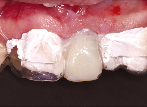 GBR using layering technique in aesthetic zone with maxgraft® and cerabone® -Dr. H. Maghaireh and Dr. V. Ivancheva
