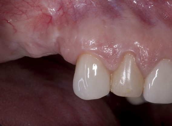 Sinus lift two-stage with  cerabone® and Jason® fleece - Dr. K. Chmielewski