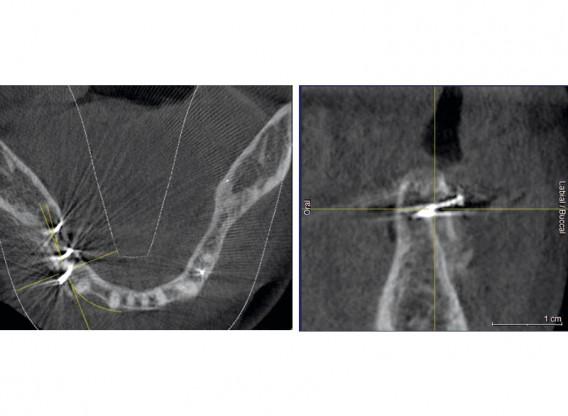 Horizontal ridge augmentation with maxgraft® cortico - E. Kapogianni, M.Sc.