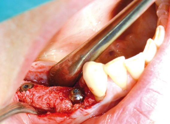 Block augmentation with maxgraft® in the mandible - PD Dr. Dr. F. Kloss