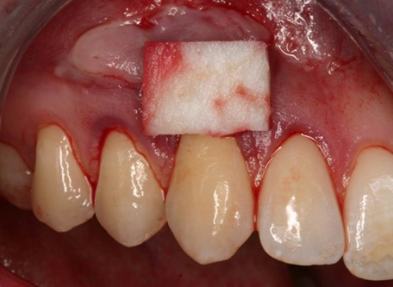 Single gingival recession treated with the envelope technique in conjunction with mucoderm® - Kasaj