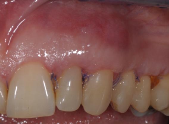 Multiple gingival recessions treated by MCAF in conjunction with mucoderm®, Straumann® Emdogain® and CTG - Benvenuto