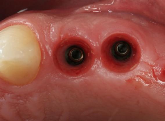 botiss cerabone® & Jason® fleece for immediate implantation - Clinical case by Dr. D. Jelušić