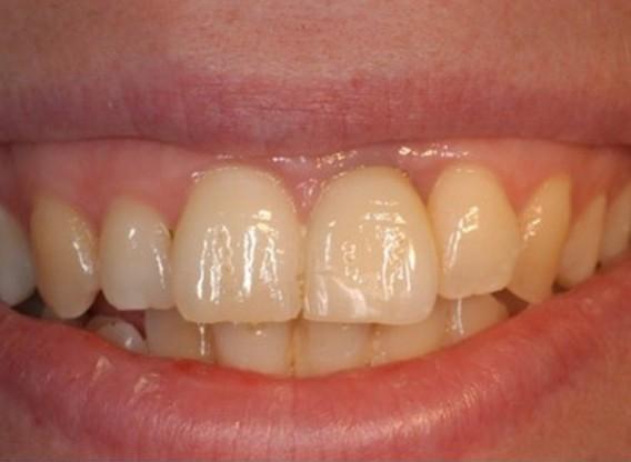 botiss cerabone® & Jason® membrane for treatment of dehiscence defect - Clinical case by Dr. M. Steigmann