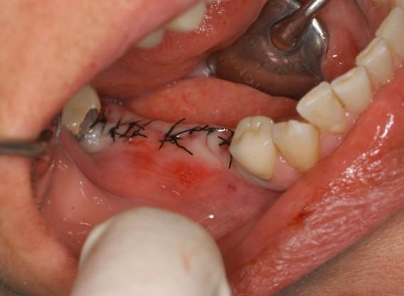 botiss cerabone® & Jason® membrane for horizontal augmentation - Clinical case by Dr. M. Steigmann
