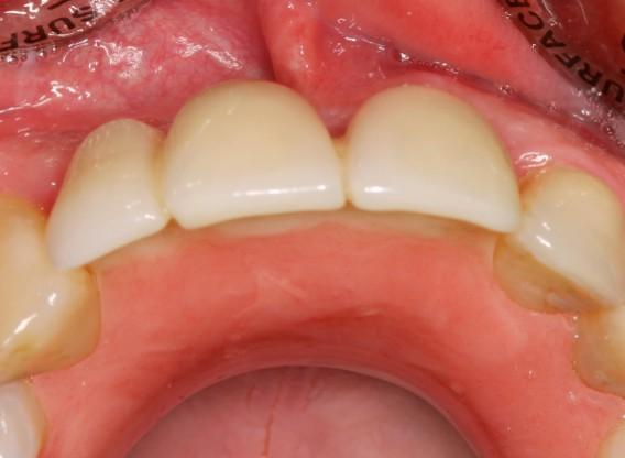 botiss cerabone® & Jason® membrane for GBR - clinical case by Dr. S. Stavar