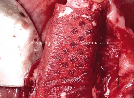 Horizontal/vertical GBR using cerabone®/maxgraft®, Jason® membrane/collprotect® membrane and Ti-mesh - Dr. A. Aziz