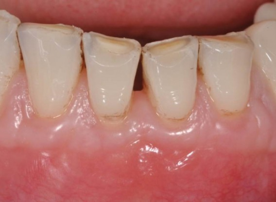 Multiple gingival recessions treated by MCAT in conjunction with mucoderm® - Cosgarea & Sculean