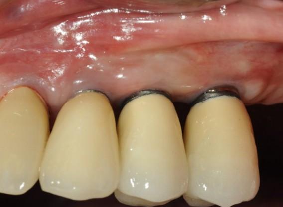 Widening of the peri-implant keratinized mucosa-Horváth