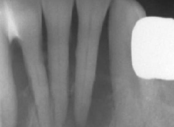 Soft tissue augmentation with GBR-Scherg