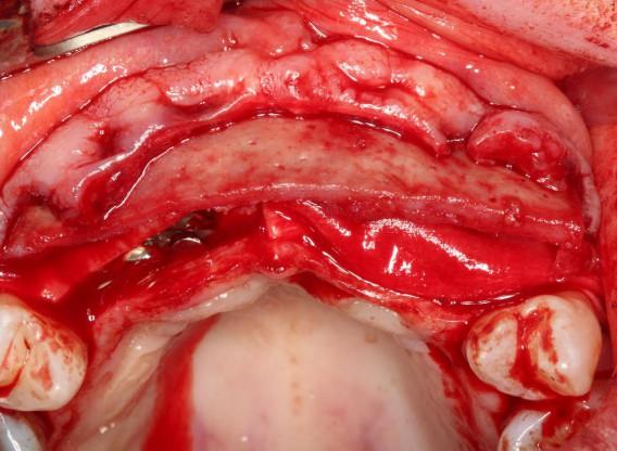 Soft tissue augmentation following ridge splitting- Rathe