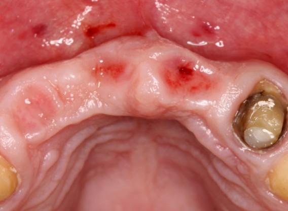 botiss mucoderm® in soft tissue augmentation for pontic- Stavar