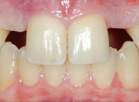 Soft tissue augmentation around missing lateral incisors- Mirisola