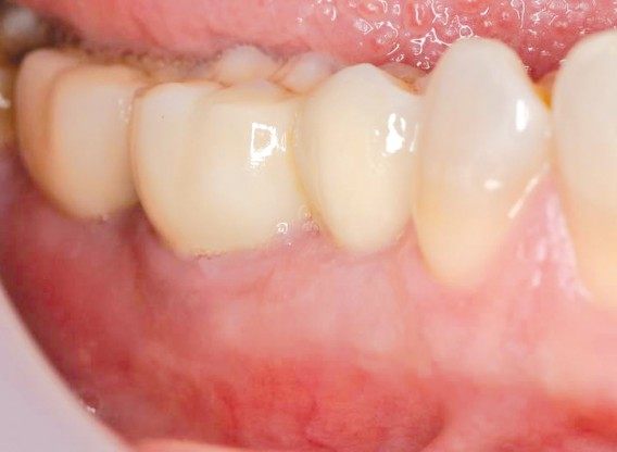 Multiple socket preservation using permamem® and collacone® max - Dr. D. B. Hangyási