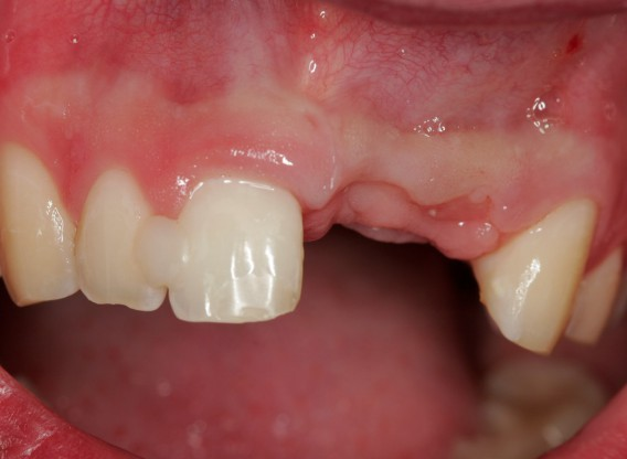 bone augmentation in the aesthetic zone with maxgraft® bonering and L-PRF™ - Dr. B. Giesenhagen