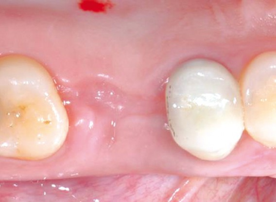 Socket sealing with mucoderm® - Dr. M. Frosecchi