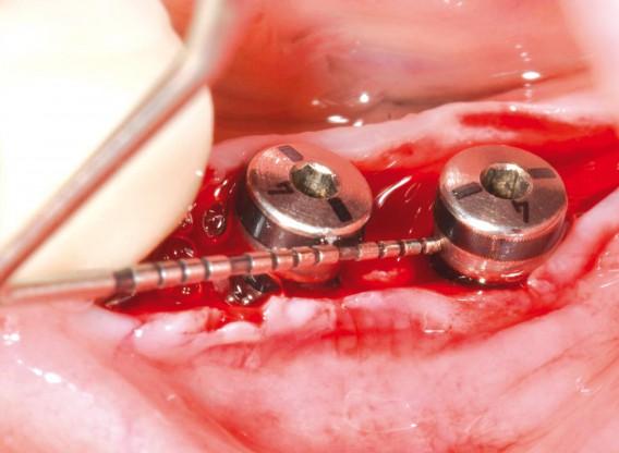 Peri-implant soft tissue thickening with mucoderm® - Dr. F. Rojas-Vizcaya