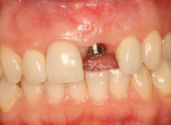 Ridge augmentation with mucoderm® & maxgraft® - Puisys