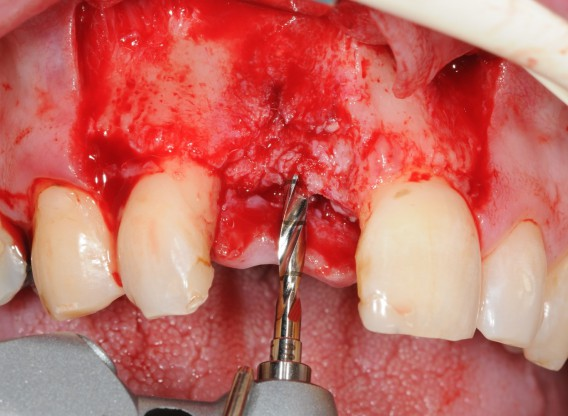 Restoration of buccal layer with maxgraft® bonering -Amit Patel