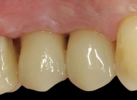 Immediate implantation with maxresorb® inject - Dr. D. Jelušić
