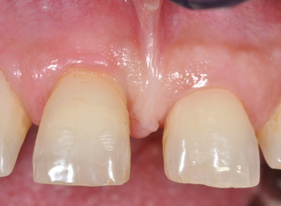 Intrabony defect treated using collprotect® membrane & cerabone® (2) - Cosgarea & Sculean