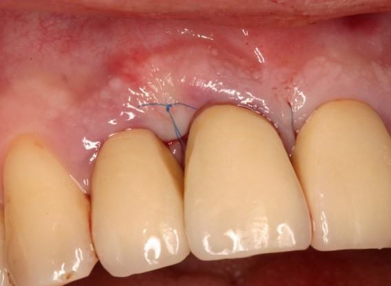 Non-contained intrabony defect treated by SPPF in conjunction with Straumann® Emdogain® and a particulate bone grafting material - Kasaj