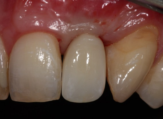 Block augmentation with maxgraft® in the maxilla - Dr. R. Cutts