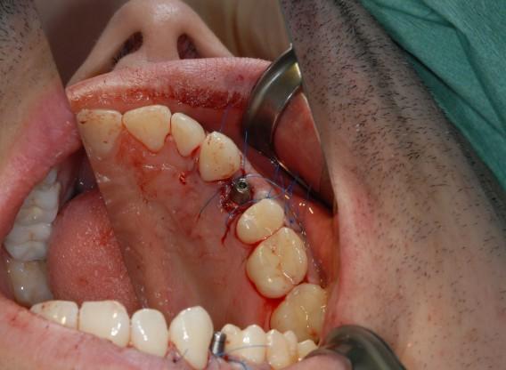 Immediate implantation with cerabone® - Dr. D. Siebers