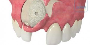 Semi-pillar incisions according to Dr Dr O Blume - maxgraft® bonebuilder