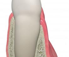 Sofortimplantation