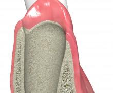 Natürliche Heilung - collacone® stabilisiert das Blutkoagulum
