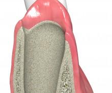 Socket preservation for late implantation