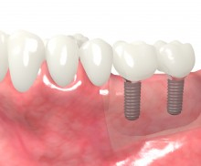 Block augmentation with maxgraft® blocks